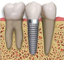tooth implant dentistry Pearland and League City