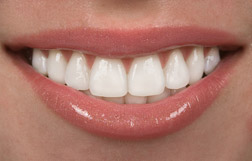 Lumineers are prepless dental veneers for teeth available to patients in Friendswood, Pearland, and League City.